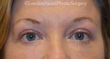 Eyelid Surgery (Blepharoplasty) After 49