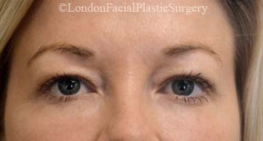 Eyelid Surgery (Blepharoplasty) Before 49