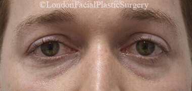 Eyelid Surgery (Blepharoplasty) Before 50