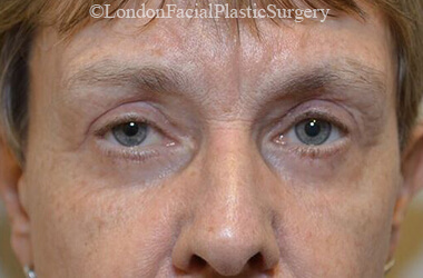 Eyelid Surgery (Blepharoplasty) After 51