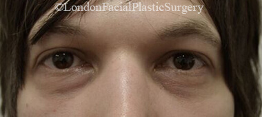 Eyelid Surgery (Blepharoplasty) Before 53