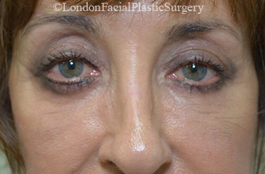 Eyelid Surgery (Blepharoplasty) After 54