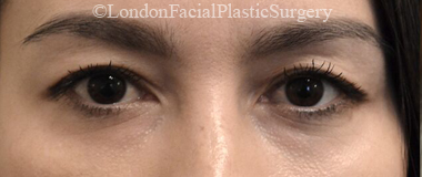 Eyelid Surgery (Blepharoplasty) Before 55
