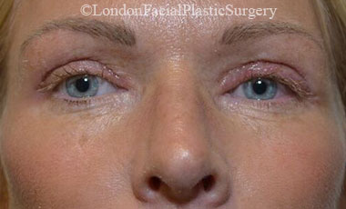 Eyelid Surgery (Blepharoplasty) After 57