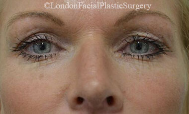 Eyelid Surgery (Blepharoplasty) Before 57