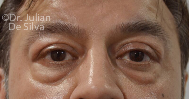 Eyelid Surgery (Blepharoplasty) Before 58
