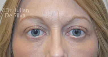 Eyelid Surgery (Blepharoplasty) After 59
