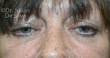 Eyelid Surgery (Blepharoplasty) After 60