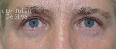 Eyelid Surgery (Blepharoplasty) After 61