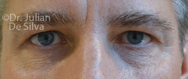 Eyelid Surgery (Blepharoplasty) Before 61
