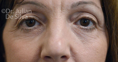 Eyelid Surgery (Blepharoplasty) Before 62
