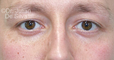 Eyelid Surgery (Blepharoplasty) After 65