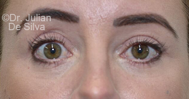 Eyelid Surgery (Blepharoplasty) After 67