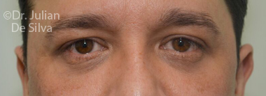 Eyelid Surgery (Blepharoplasty) After 68