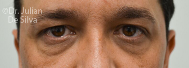 Eyelid Surgery (Blepharoplasty) Before 68