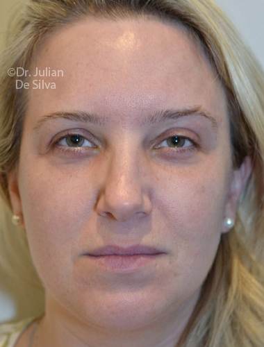 Eyelid Surgery (Blepharoplasty) After 69