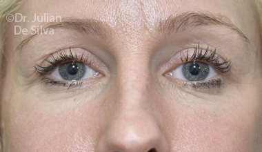 Eyelid Surgery (Blepharoplasty) After 70