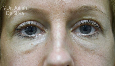 Eyelid Surgery (Blepharoplasty) Before 70