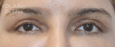 Eyelid Surgery (Blepharoplasty) After 71