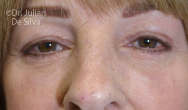 Eyelid Surgery (Blepharoplasty) After 73