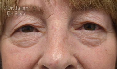 Eyelid Surgery (Blepharoplasty) Before 73