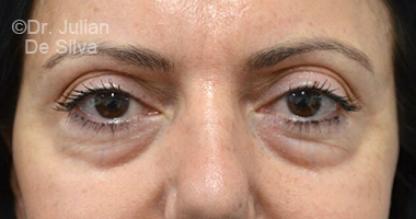 Eyelid Surgery (Blepharoplasty) Before 74