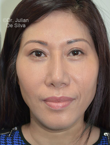 Eyelid Surgery (Blepharoplasty) After 76