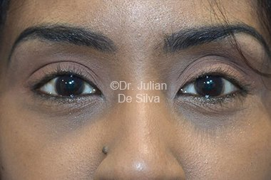 Eyelid Surgery (Blepharoplasty) After 77