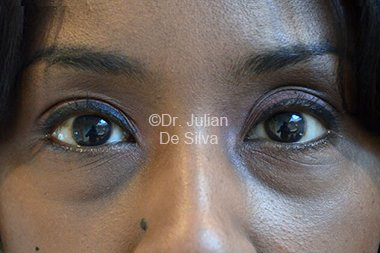 Eyelid Surgery (Blepharoplasty) Before 77