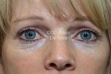 Eyelid Surgery (Blepharoplasty) After 78