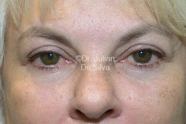 Eyelid Surgery (Blepharoplasty) After 79