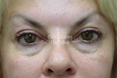 Eyelid Surgery (Blepharoplasty) Before 79
