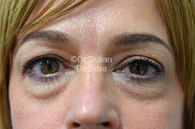Eyelid Surgery (Blepharoplasty) Before 80