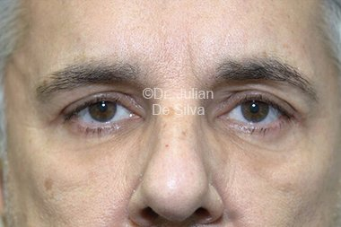 Eyelid Surgery (Blepharoplasty) After 81