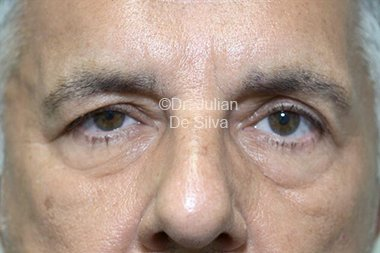 Eyelid Surgery (Blepharoplasty) Before 81