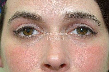 Eyelid Surgery (Blepharoplasty) After 82