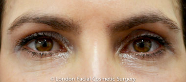 Eyelid Surgery (Blepharoplasty) After 9