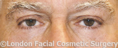 Eyelid Surgery (Blepharoplasty) After 3