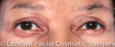 Eyelid Surgery (Blepharoplasty) After 5