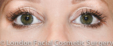 Eyelid Surgery (Blepharoplasty) After 6