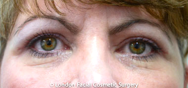 Eyelid Surgery (Blepharoplasty) After 7