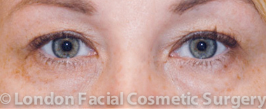 Eyelid Surgery (Blepharoplasty) Before 2