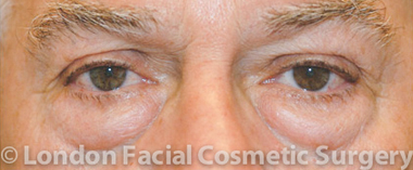 Eyelid Surgery (Blepharoplasty) Before 3