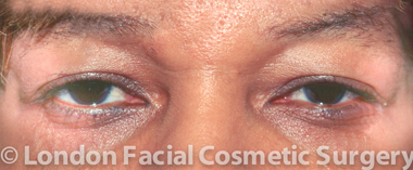 Eyelid Surgery (Blepharoplasty) Before 5