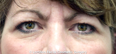 Eyelid Surgery (Blepharoplasty) Before 7