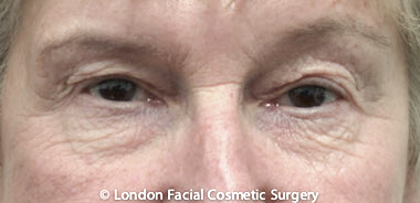 Eyelid Surgery (Blepharoplasty) Before 8