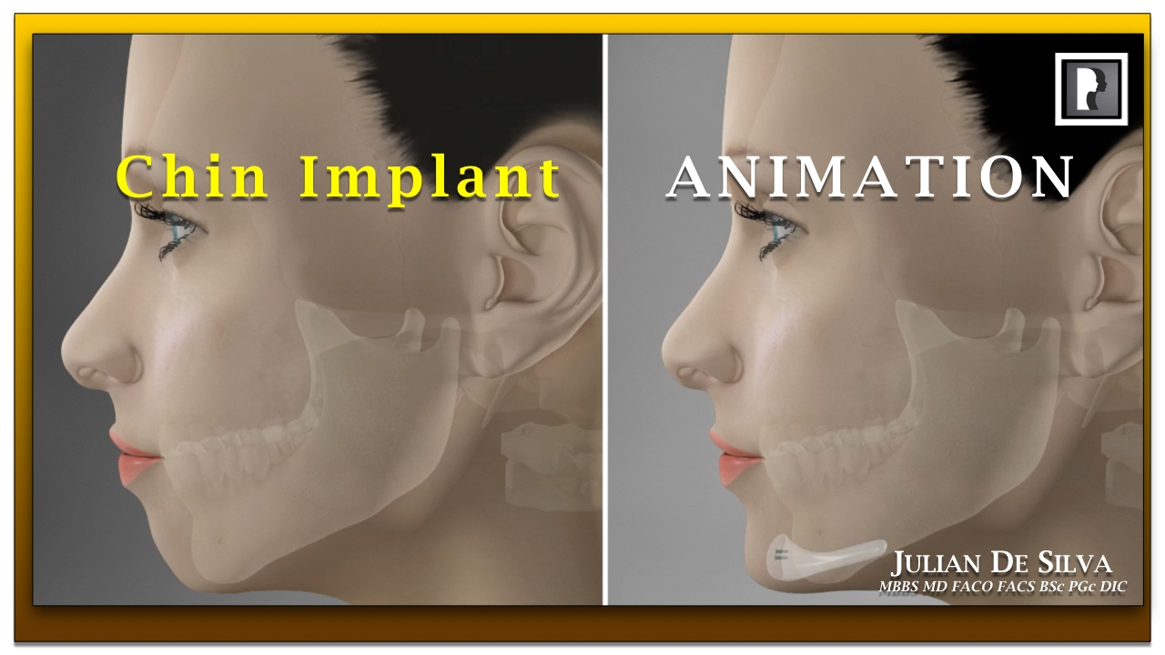 Watch Video: Chin Implant Animation Video - How is a chin implant inserted?
