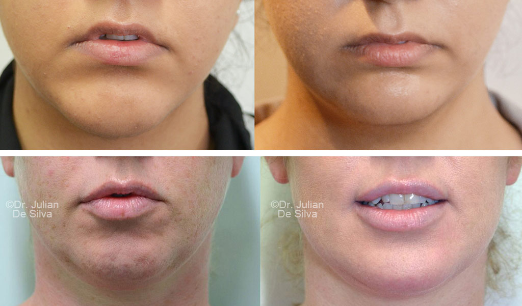 Woman's face, before and after Chin Implants treatment, front view, female patient 2