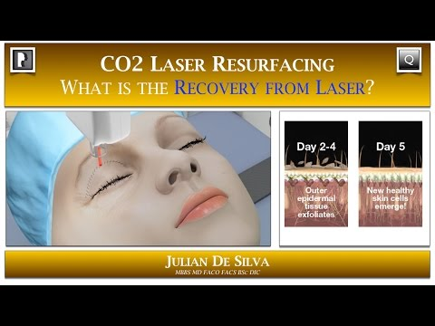 Watch Video: Skin & Laser Question- What is the Recovery Time from CO2 Laser Skin Resurfacing?