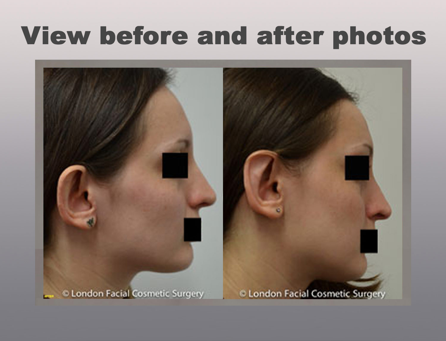 Ear Cosmetic Surgery: View before and after pthotos